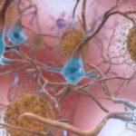 Alzheimer: scoperto enzima come possibile nuovo bersaglio farmacologico