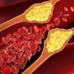 """Il colesterolo """"buono"""" combatte l'aterosclerosi"""