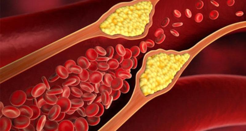 Aterosclerosi colesterolo HDL