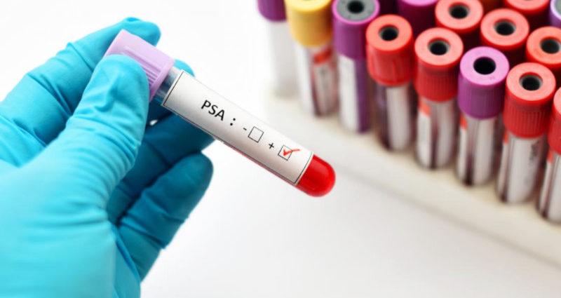 Nuovo test per cancro prostata