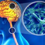 La Sclerosi multipla è causata da disfunzione immunitaria secondo nuovo studio