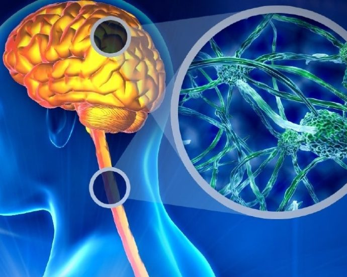 Sclerosi multipla causa