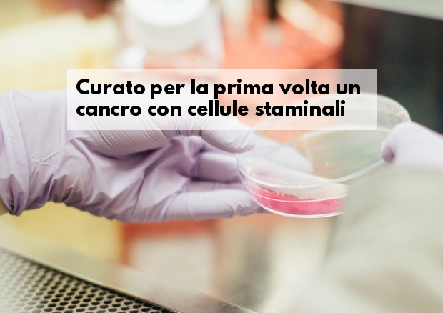 Cellule staminali Car-T curato cancro