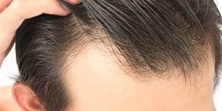 Alopecia androgenetica cure