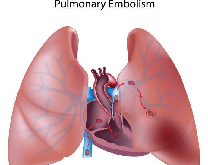Embolia polmonare Coronavirus