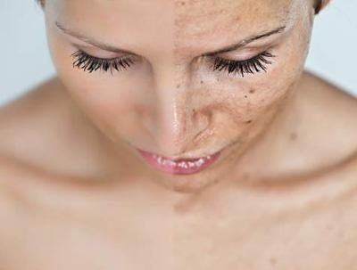 Macchie della pelle come eliminarle