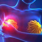 Tumori al seno: nuove future cure con molecola nanotecnologica