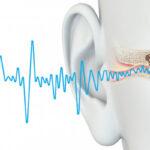 Acufeni: nuovo rimedio con la neuromodulazione