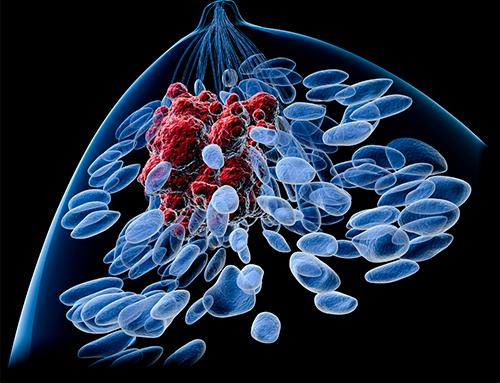 Tumore al seno inibitori LMTK3