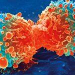 Cause tumori squilibrio fra proteine
