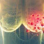 Tumore al seno nuove scoperte 2021: interruttori molecolari lo rallentano