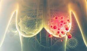 Tumori seno nuove scoperte microRNA