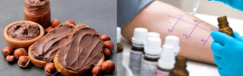 Allergia alla nocciola proteina